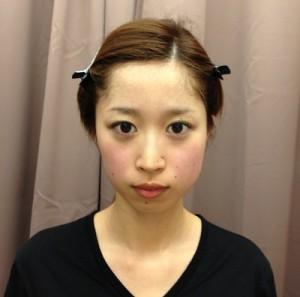 小顔After2